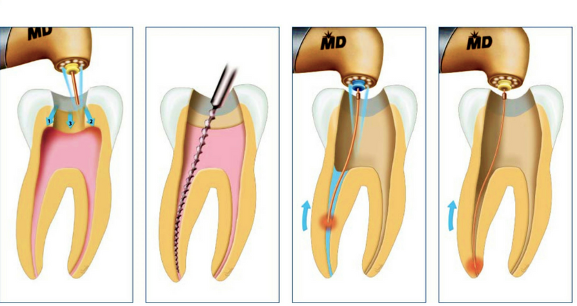 Root Canal Treatment in Bangalore   Dental Clinic